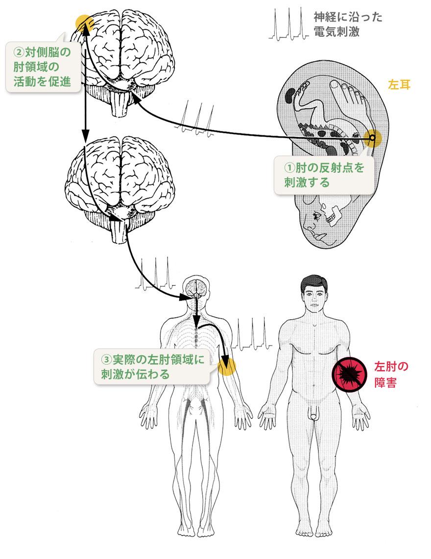 ニューロオリキュロセラピーの仕組み