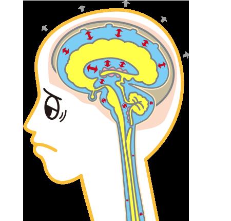 脳脊髄液(CSF)の循環が滞っていると…