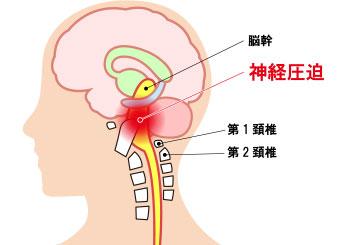 上部頚椎関節
