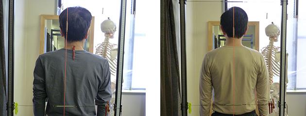 背骨・骨盤の歪み、バランスの異常の検査